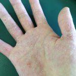 手荒れ改善 50年間看護師やってたベテランも知らない手荒れの改善方法