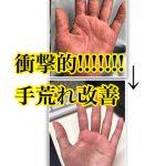 衝撃写真あり、手荒れ改善!!!!