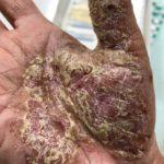 掌蹠膿疱症改善の奇跡