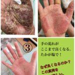 掌蹠膿疱症の改善②告白