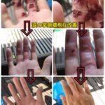 涙の掌蹠膿疱症改善。塩に効果がある【証拠写真あり】